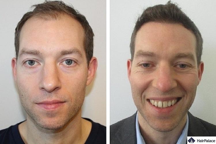 toby prima e dopo il trapianto di capelli
