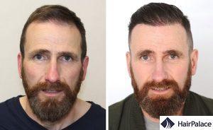 trapianto capelli risultato Regno Unito