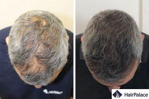 trapianto capelli risultato italia