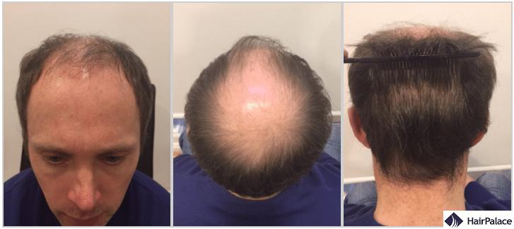 tom prima del trapianto di capelli