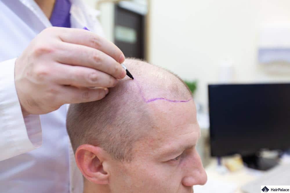 Come può trattare la Sua perdita di capelli?